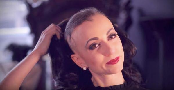 Alopecie seniors