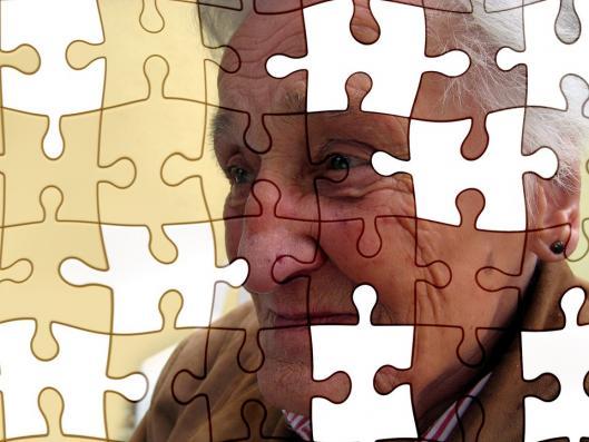 Demence sante alzheimer