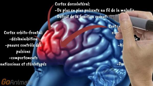 La demence du cerveau seniors